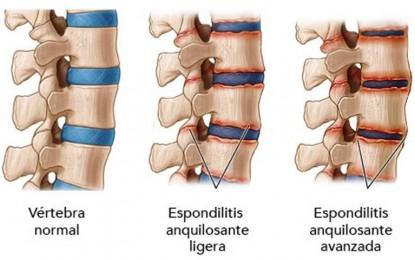 Hombres con dolor de espalda podrían padecer enfermedad reumática y no saberlo