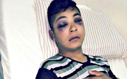 Una mujer denunció que su hijo fue víctima de violencia policial