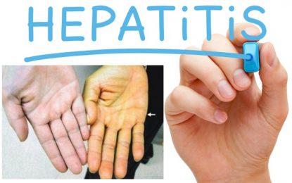 Especialistas expondrán el jueves sobre hepatitis