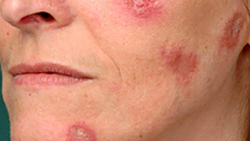 El lupus: una enfermedad poco conocida con la que conviven ...